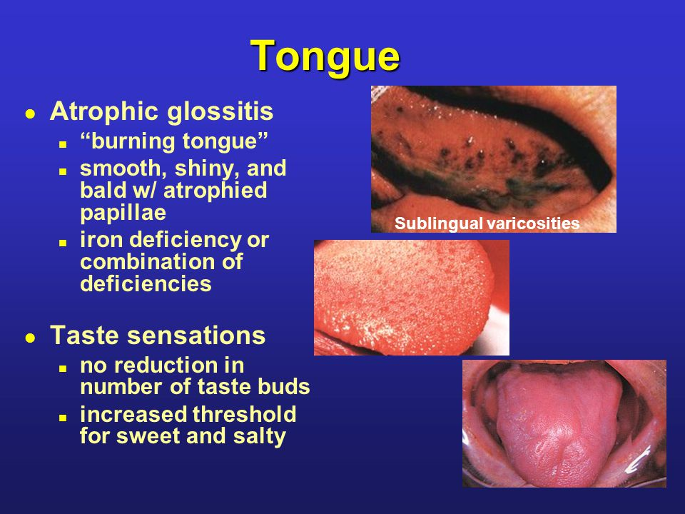 Tongue l Atrophic glossitis n burning tongue n smooth, shiny, and bald w/ atrophied papillae n iron deficiency or combination of deficiencies l Taste sensations n no reduction in number of taste buds n increased threshold for sweet and salty Sublingual varicosities