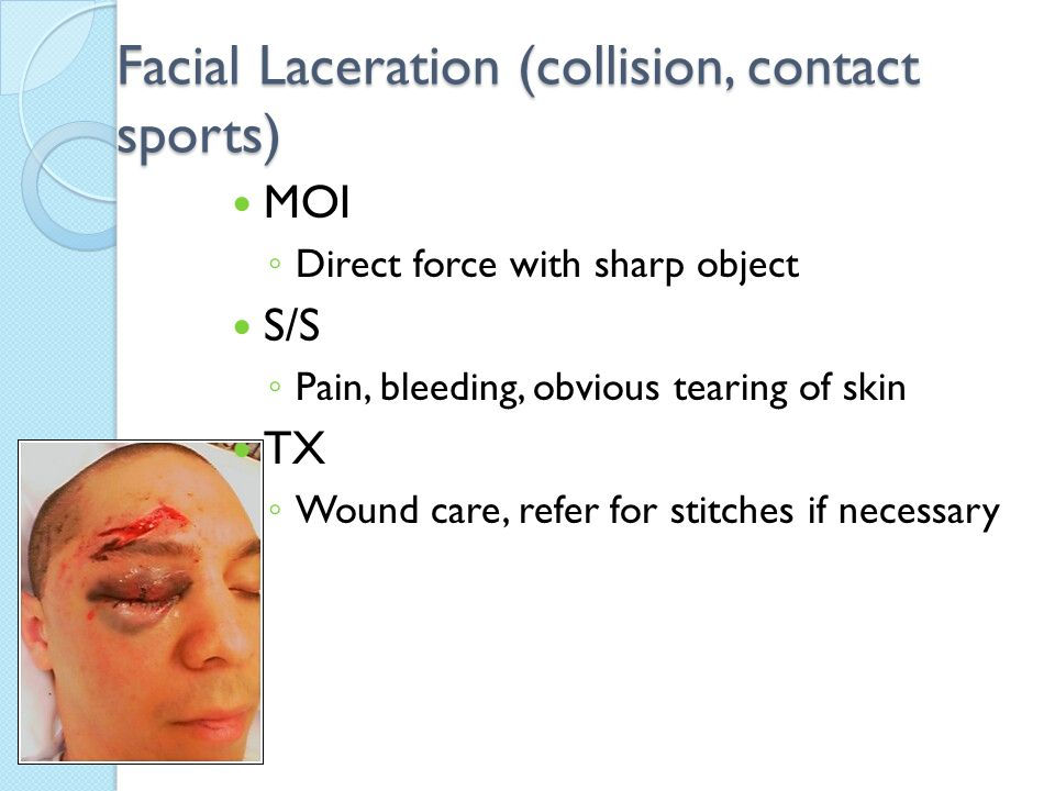 Facial Laceration (collision, contact sports) MOI ◦ Direct force with sharp object S/S ◦ Pain, bleeding, obvious tearing of skin TX ◦ Wound care, refe