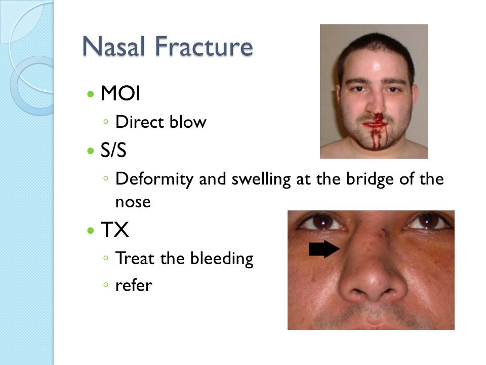 Nasal Fracture MOI ◦ Direct blow S/S ◦ Deformity and swelling at the bridge of the nose TX ◦ Treat the bleeding ◦ refer