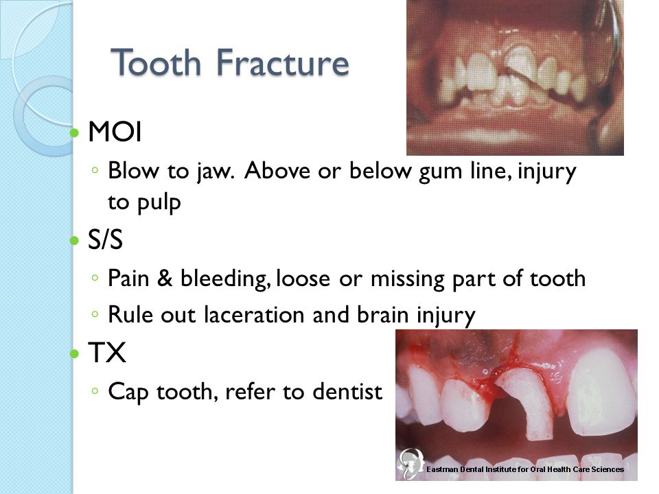 Tooth Fracture MOI ◦ Blow to jaw. Above or below gum line, injury to pulp S/S ◦ Pain & bleeding, loose or missing part of tooth ◦ Rule out laceration
