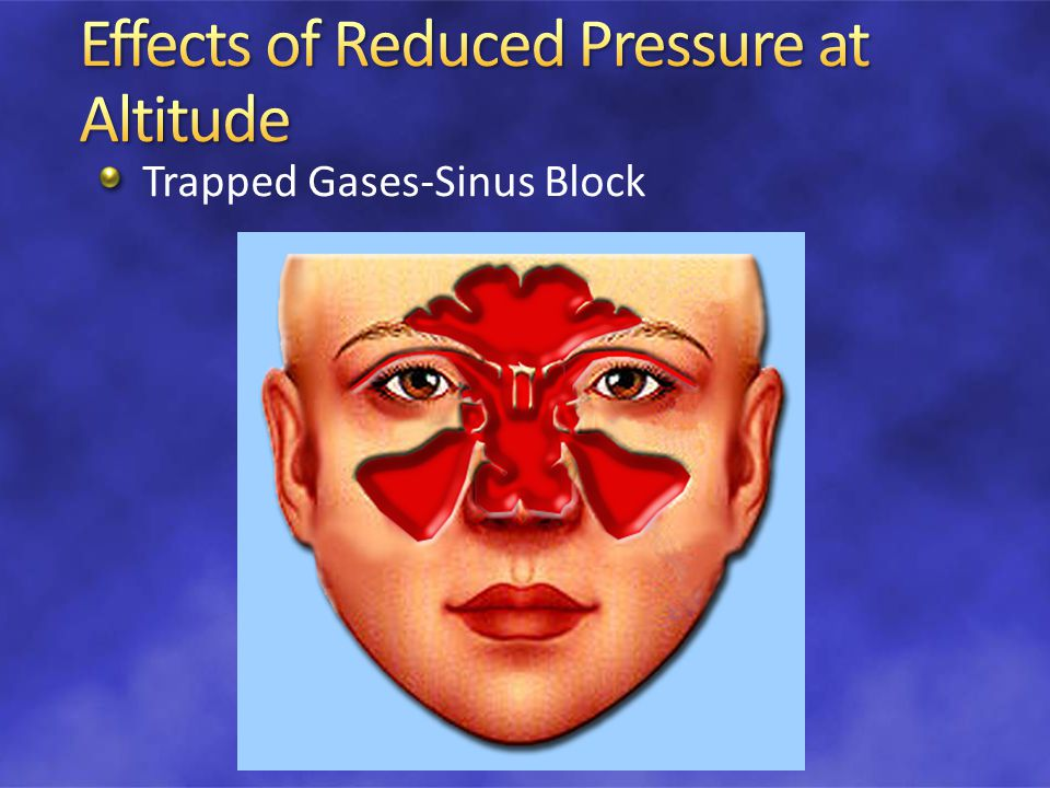 Trapped Gases-Sinus Block
