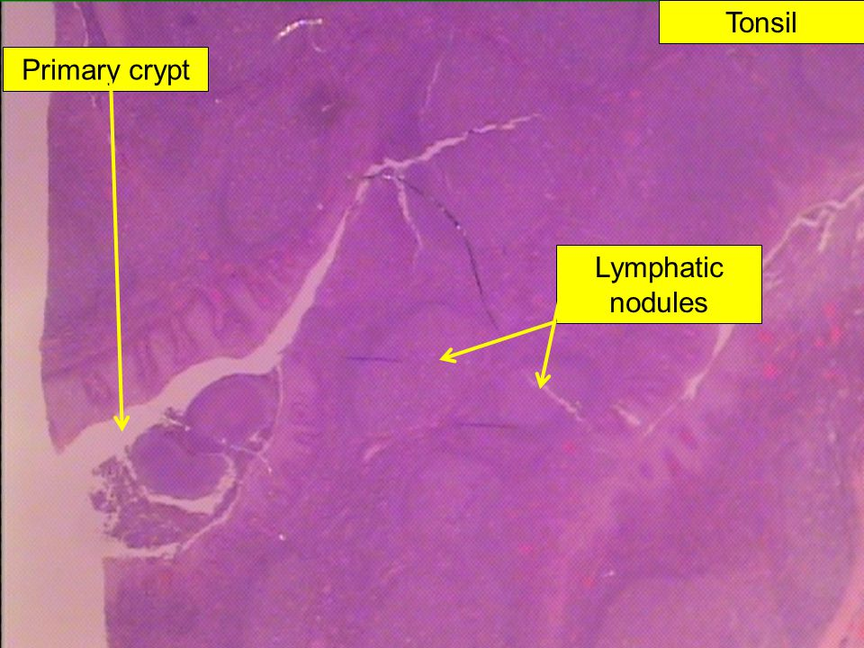 Primary crypt Lymphatic nodules