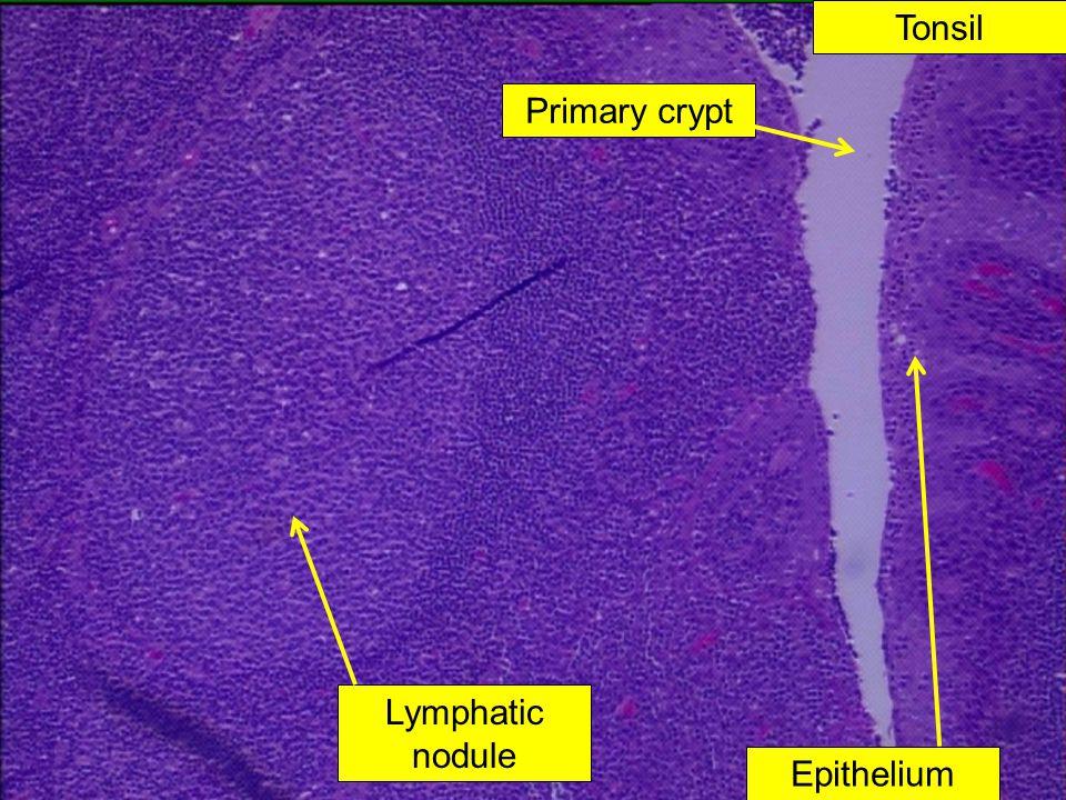 Tonsil Primary crypt Lymphatic nodule Epithelium