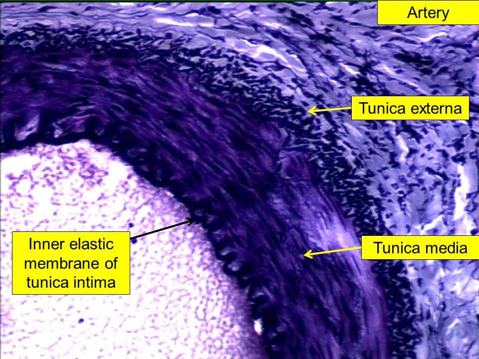 Artery Inner elastic membrane of tunica intima Tunica externa Tunica media