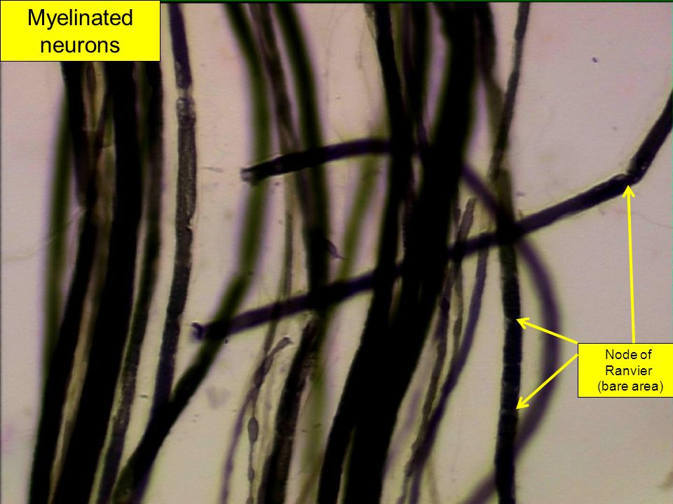 Node of Ranvier (bare area) Myelinated neurons