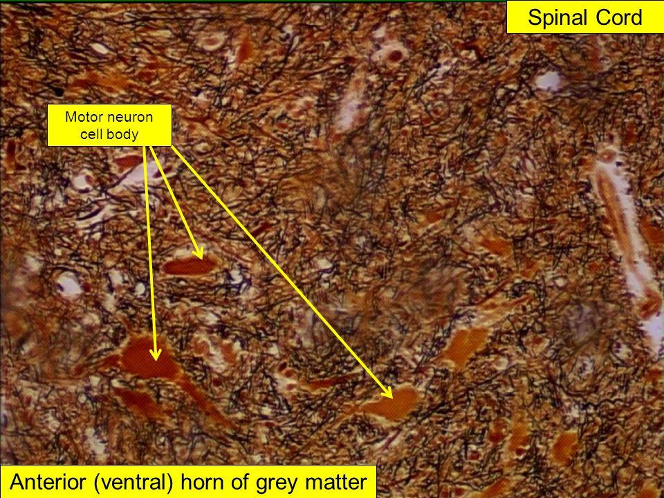Spinal Cord Anterior (ventral) horn of grey matter Motor neuron cell body