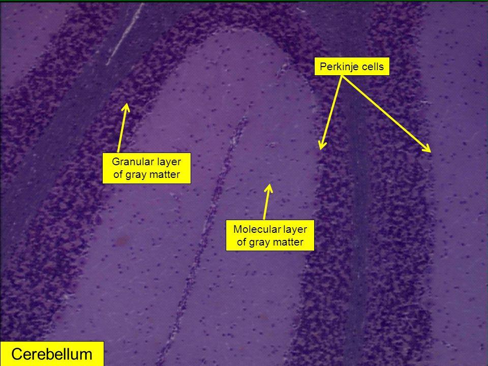 Cerebellum Granular layer of gray matter Perkinje cells Molecular layer of gray matter