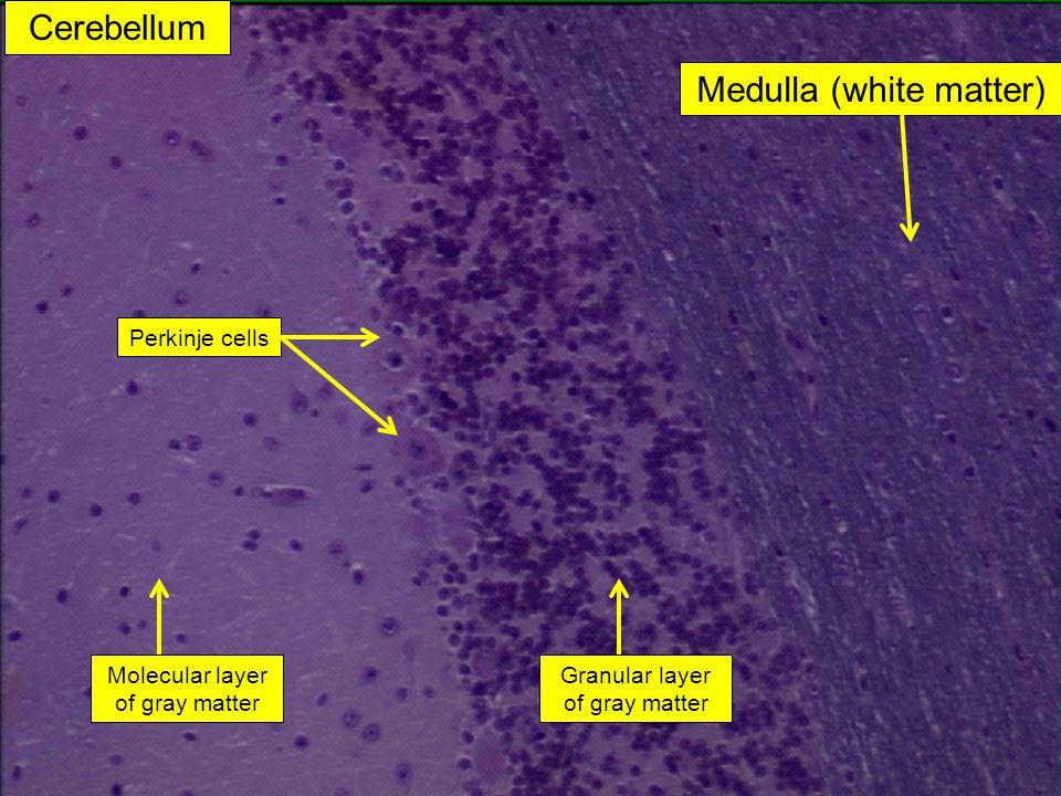 Cerebellum Medulla (white matter) Perkinje cells Granular layer of gray matter Molecular layer of gray matter