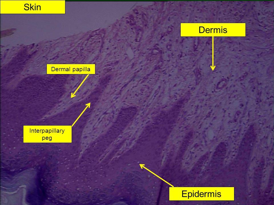 Skin Dermis Epidermis Dermal papilla Interpapillary peg