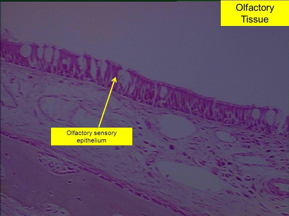 Olfactory Tissue Olfactory sensory epithelium