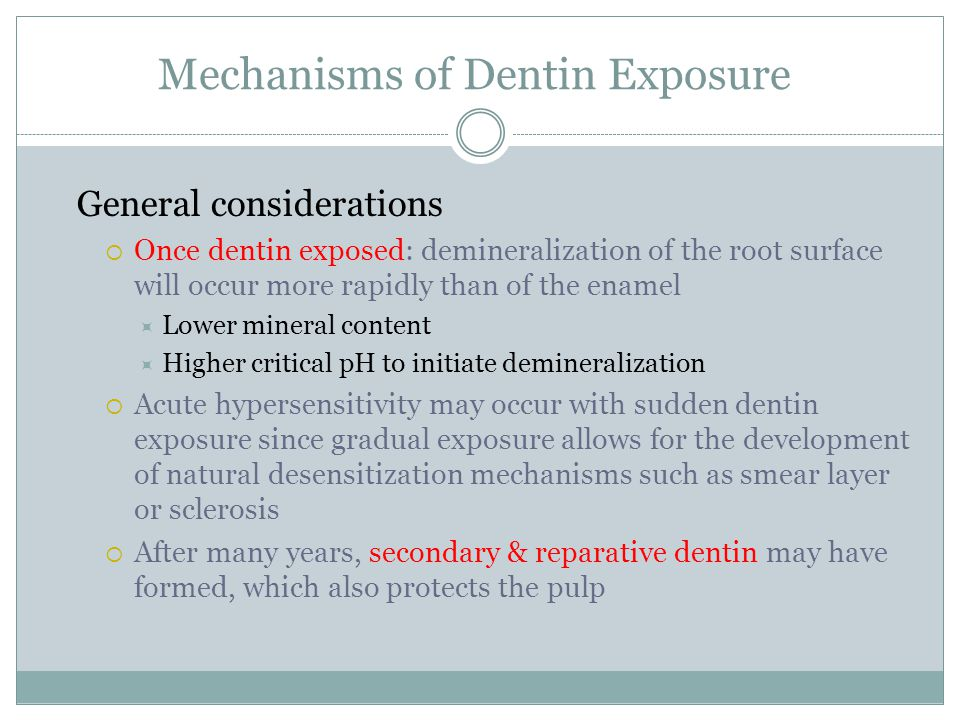 Mechanisms of Dentin Exposure General considerations  Once dentin exposed: demineralization of the root surface will occur more rapidly than of the e