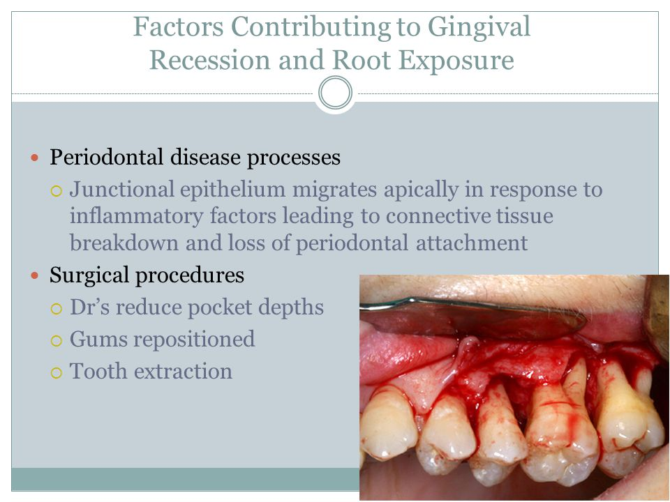 Factors Contributing to Gingival Recession and Root Exposure Periodontal disease processes  Junctional epithelium migrates apically in response to in