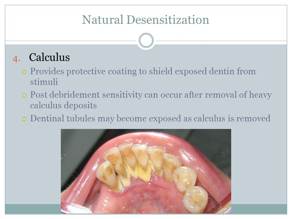 Natural Desensitization 4. Calculus  Provides protective coating to shield exposed dentin from stimuli  Post debridement sensitivity can occur after