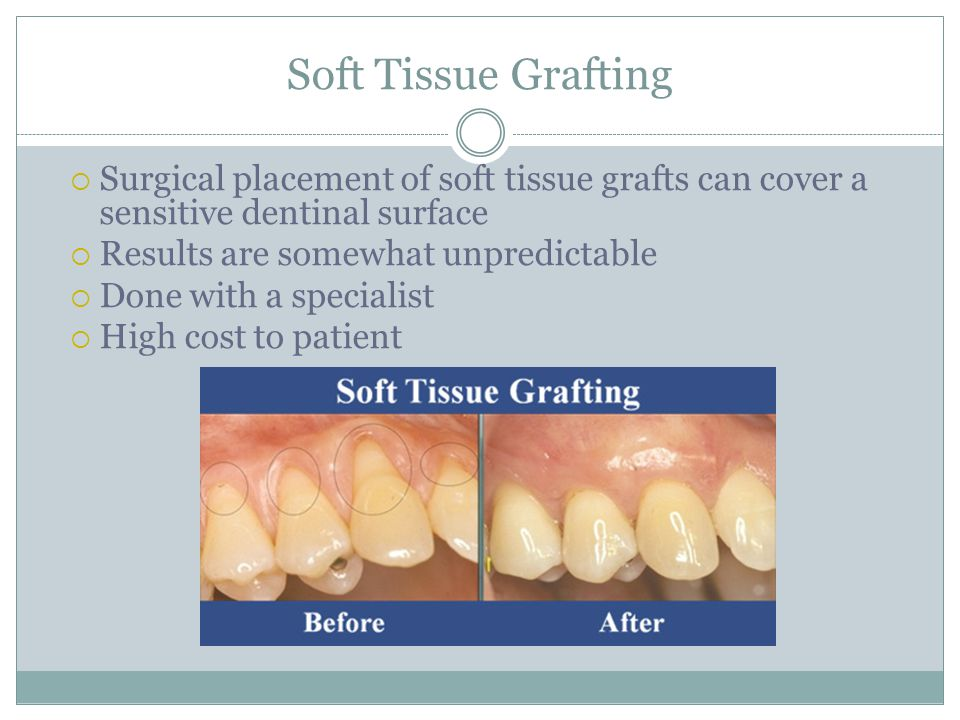 Soft Tissue Grafting  Surgical placement of soft tissue grafts can cover a sensitive dentinal surface  Results are somewhat unpredictable  Done wit