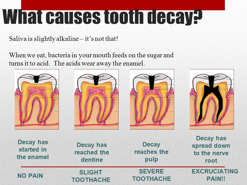 What causes tooth decay. Saliva is slightly alkaline – it's not that.