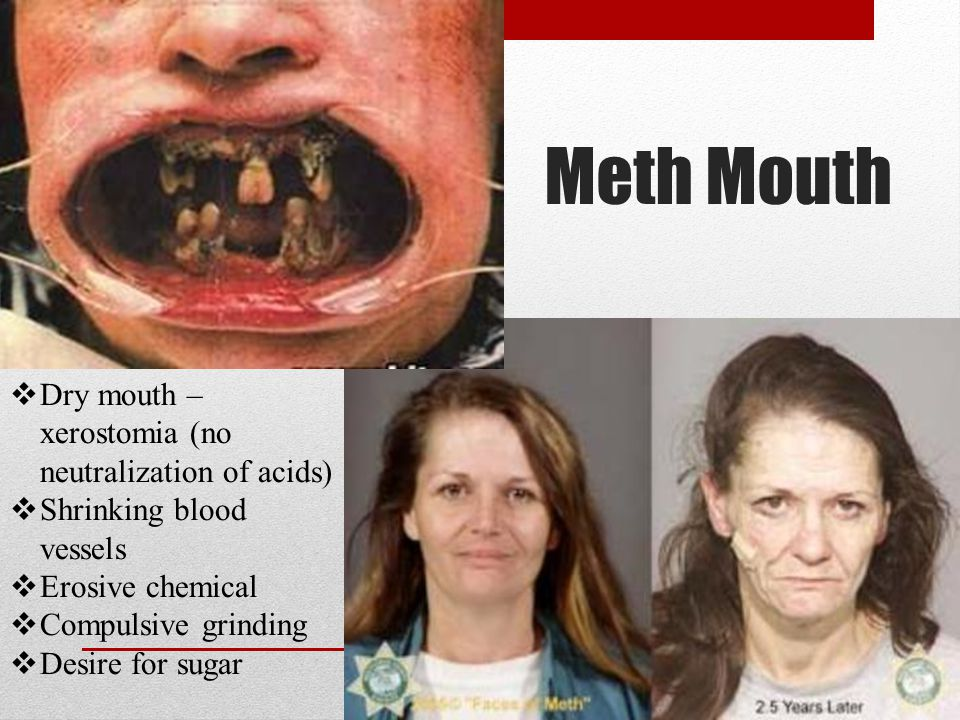 Meth Mouth  Dry mouth – xerostomia (no neutralization of acids)  Shrinking blood vessels  Erosive chemical  Compulsive grinding  Desire for sugar
