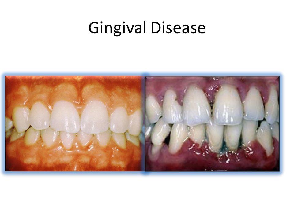 Gingival Disease GingivitisPeriodontitis