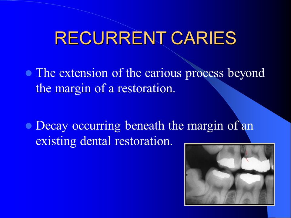 RAMPANT CARIES Widespread and rapidly progressing type of dental caries.