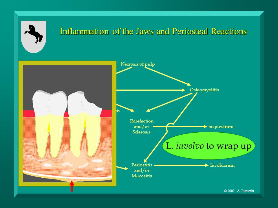 © 2007 A. Ruprecht Inflammation of the Jaws and Periosteal Reactions Necrosis of pulp Osteitis Rarefaction and/or Sclerosis Root ResorptionHypercement