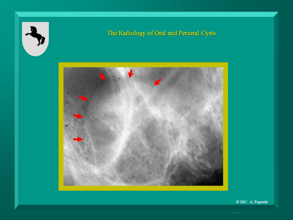 © 2007 A. Ruprecht The Radiology of Oral and Perioral Cysts