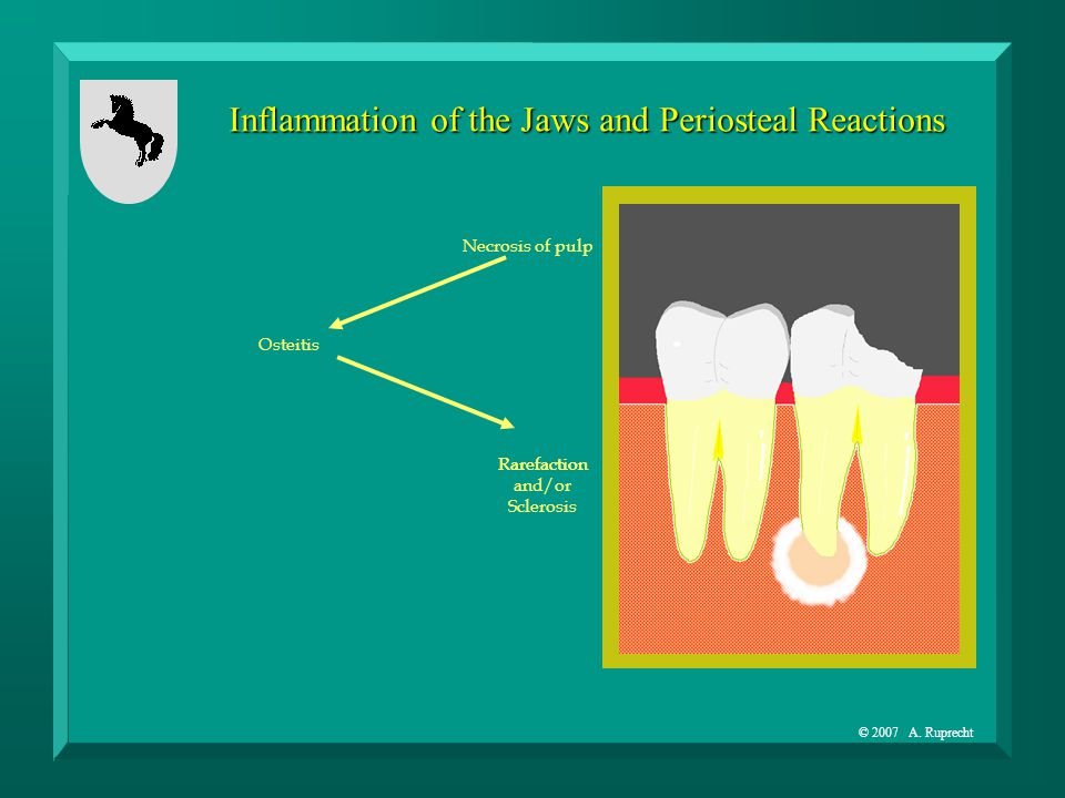 © 2007 A. Ruprecht Inflammation of the Jaws and Periosteal Reactions Necrosis of pulp Osteitis Rarefaction and/or Sclerosis