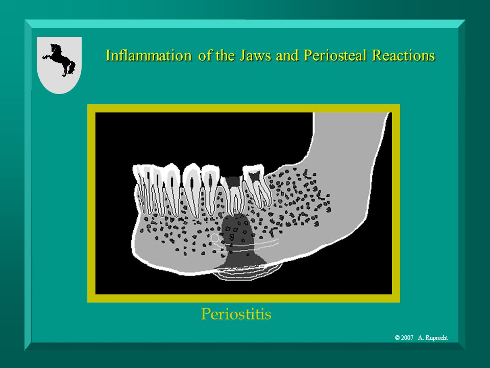 © 2007 A. Ruprecht Inflammation of the Jaws and Periosteal Reactions Periostitis