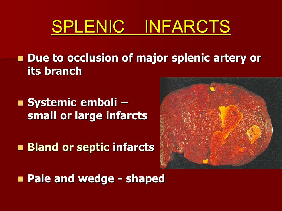 SPLENIC INFARCTS Due to occlusion of major splenic artery or its branch Due to occlusion of major splenic artery or its branch Systemic emboli – small