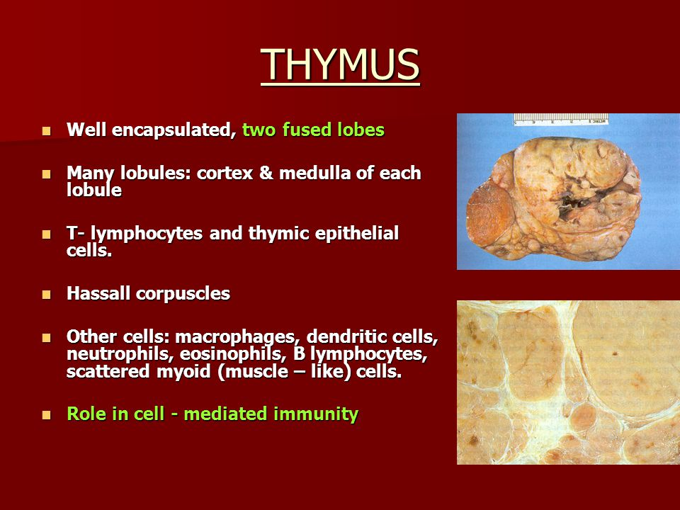 THYMUS Well encapsulated, two fused lobes Well encapsulated, two fused lobes Many lobules: cortex & medulla of each lobule Many lobules: cortex & medu