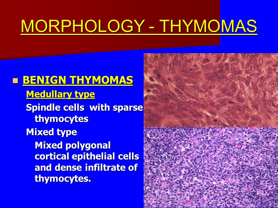 MORPHOLOGY - THYMOMAS BENIGN THYMOMAS BENIGN THYMOMAS Medullary type Spindle cells with sparse thymocytes Mixed type Mixed polygonal cortical epitheli