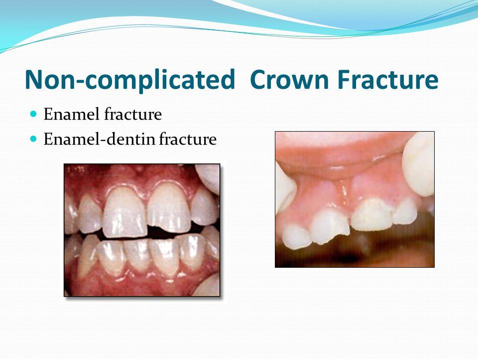 Non-complicated Crown Fracture Enamel fracture Enamel-dentin fracture