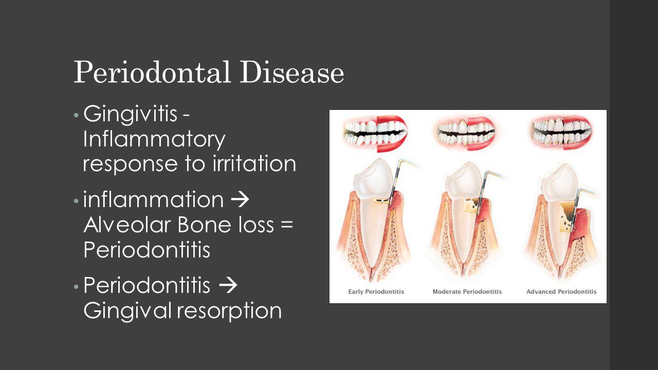 Periodontal Disease Gingivitis - Inflammatory response to irritation inflammation  Alveolar Bone loss = Periodontitis Periodontitis  Gingival resorp