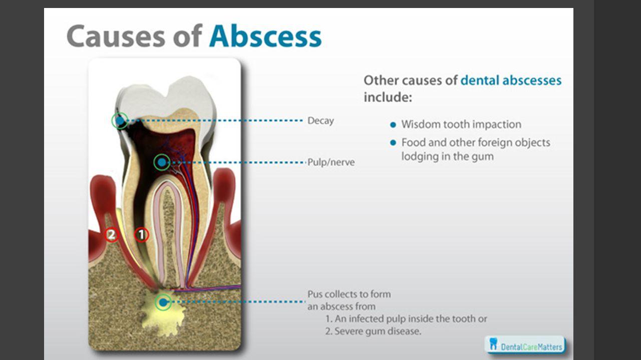 Types of Dental Abscess
