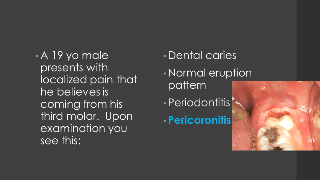 A 19 yo male presents with localized pain that he believes is coming from his third molar. Upon examination you see this: Dental caries Normal eruptio