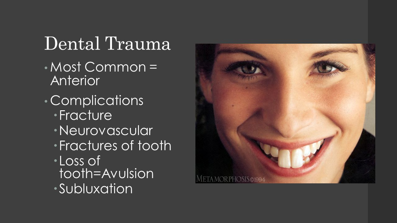 Dental Trauma Most Common = Anterior Complications  Fracture  Neurovascular  Fractures of tooth  Loss of tooth=Avulsion  Subluxation