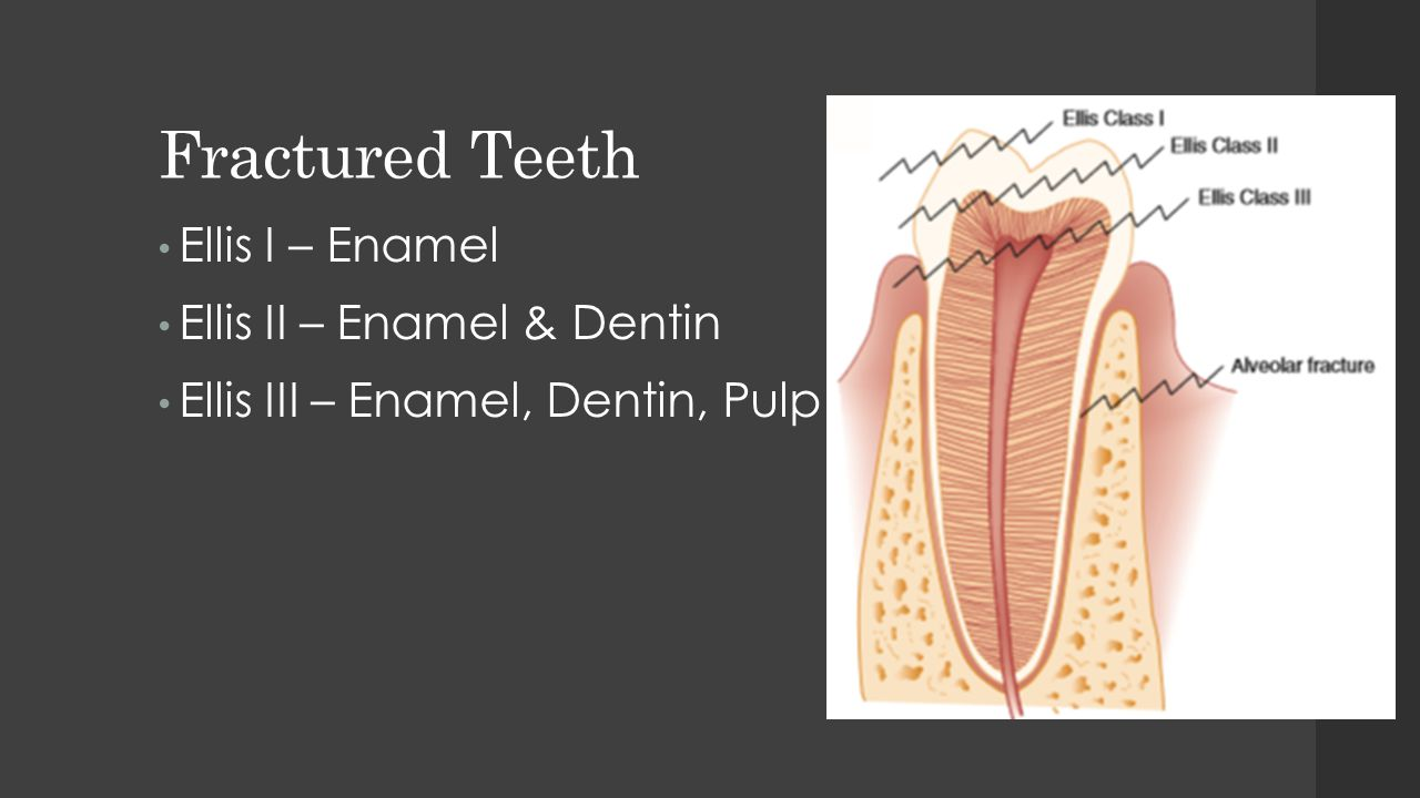 Fractured Teeth Ellis I – Enamel Ellis II – Enamel & Dentin Ellis III – Enamel, Dentin, Pulp