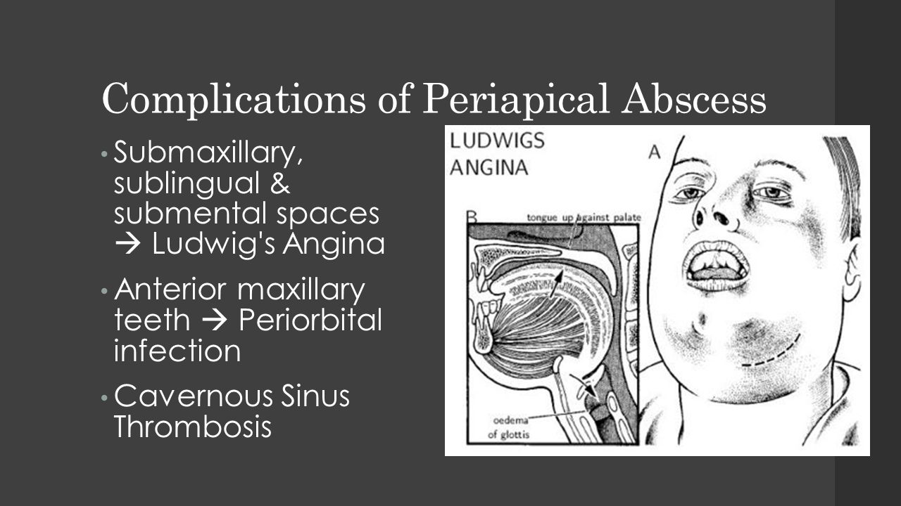 Complications of Periapical Abscess Submaxillary, sublingual & submental spaces  Ludwig's Angina Anterior maxillary teeth  Periorbital infection Cav