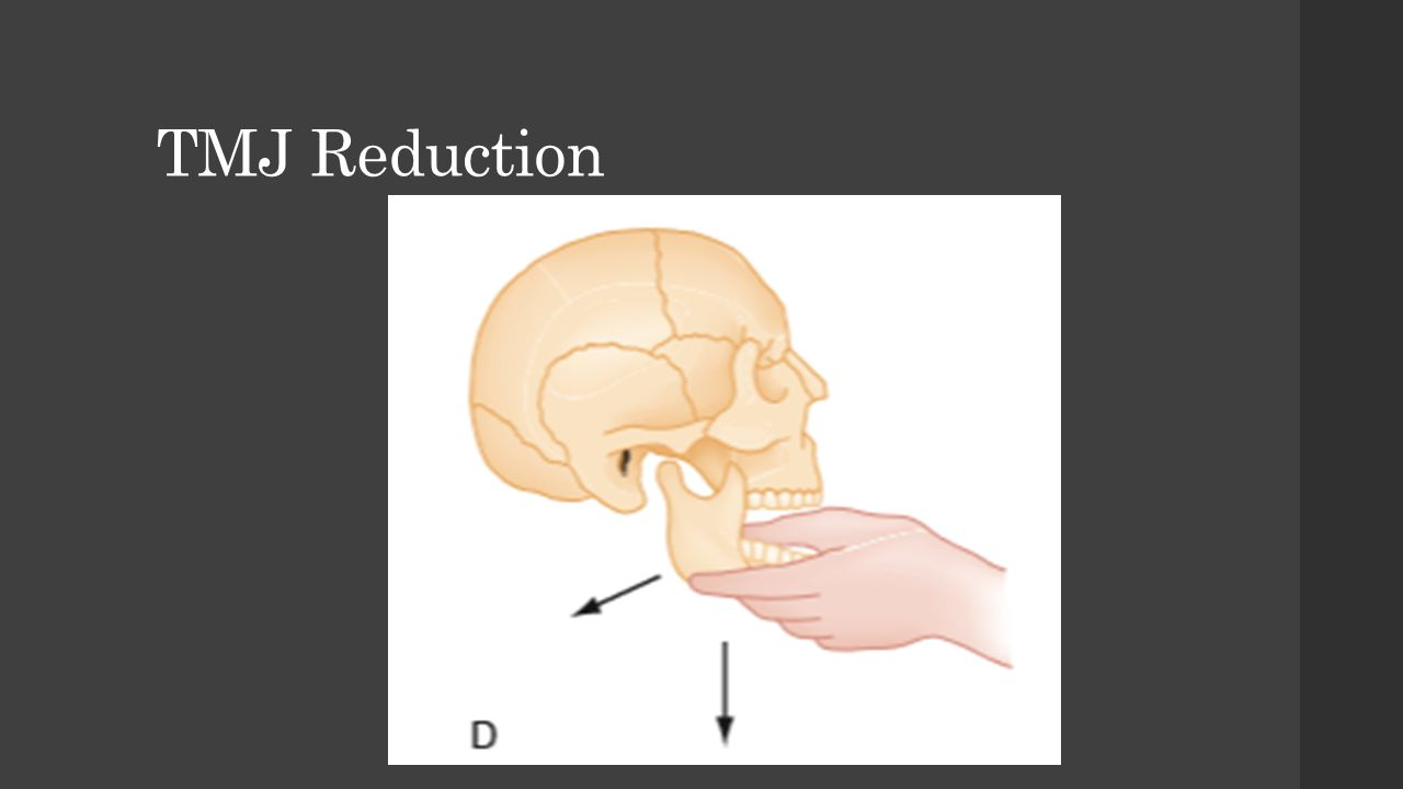TMJ Reduction