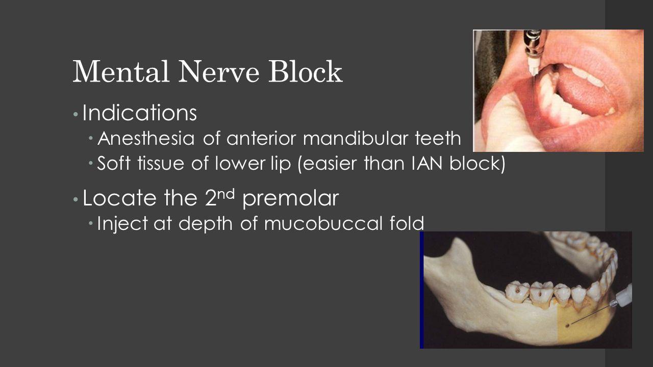Mental Nerve Block Indications  Anesthesia of anterior mandibular teeth  Soft tissue of lower lip (easier than IAN block) Locate the 2 nd premolar 