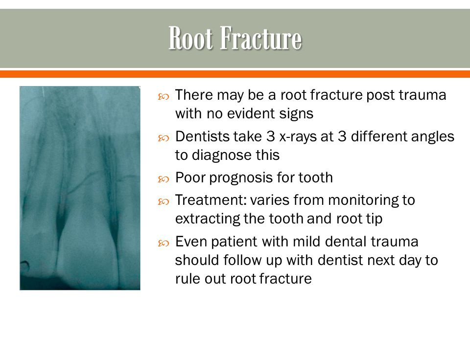  There may be a root fracture post trauma with no evident signs  Dentists take 3 x-rays at 3 different angles to diagnose this  Poor prognosis for