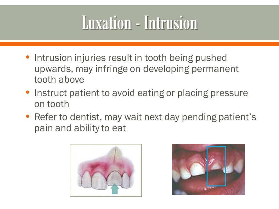 Intrusion injuries result in tooth being pushed upwards, may infringe on developing permanent tooth above Instruct patient to avoid eating or placing