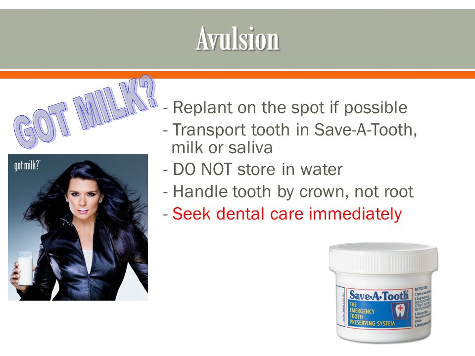 - Replant on the spot if possible - Transport tooth in Save-A-Tooth, milk or saliva - DO NOT store in water - Handle tooth by crown, not root - Seek d