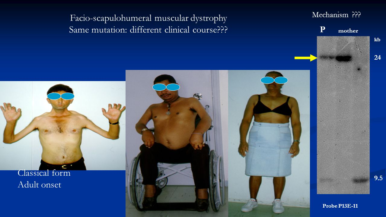 Facio-scapulohumeral muscular dystrophy Same mutation: different clinical course .