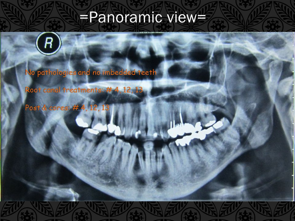 =Panoramic view= No pathologies and no imbedded teethNo pathologies and no imbedded teeth Root canal treatments: # 4, 12, 13Root canal treatments: # 4, 12, 13 Post & cores: # 4, 12, 13Post & cores: # 4, 12, 13