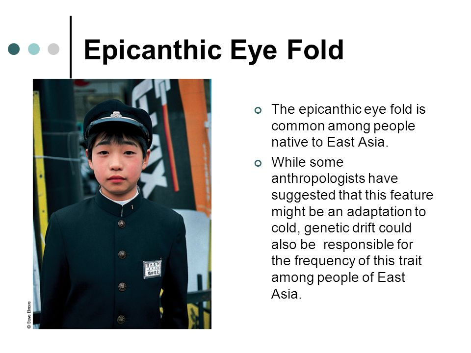 Epicanthic Eye Fold The epicanthic eye fold is common among people native to East Asia. While some anthropologists have suggested that this feature mi
