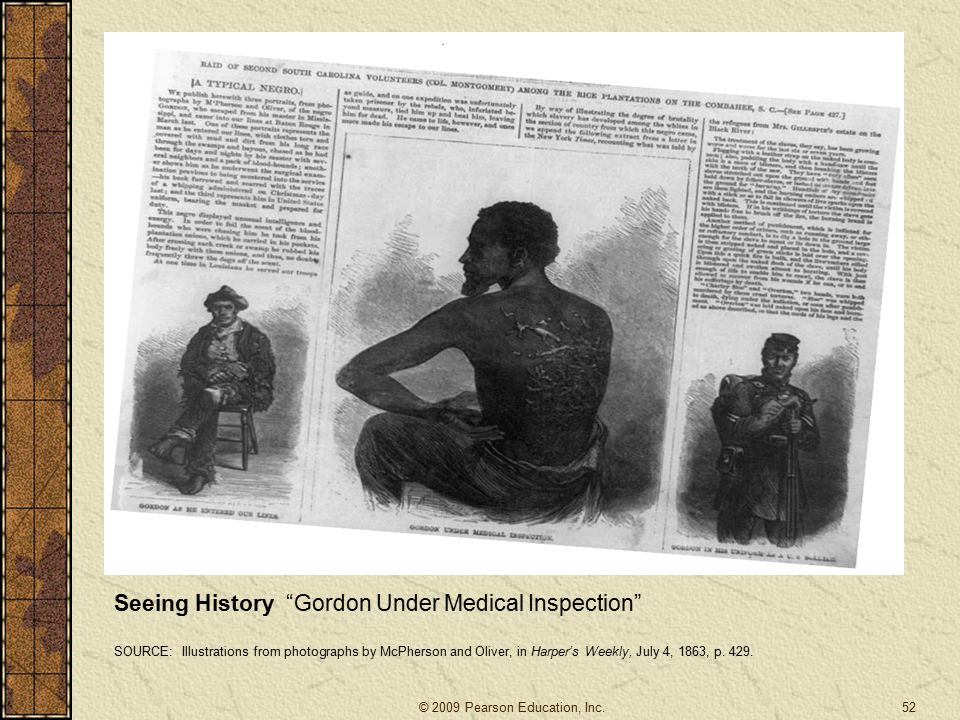 Seeing History Gordon Under Medical Inspection SOURCE: Illustrations from photographs by McPherson and Oliver, in Harper's Weekly, July 4, 1863, p.