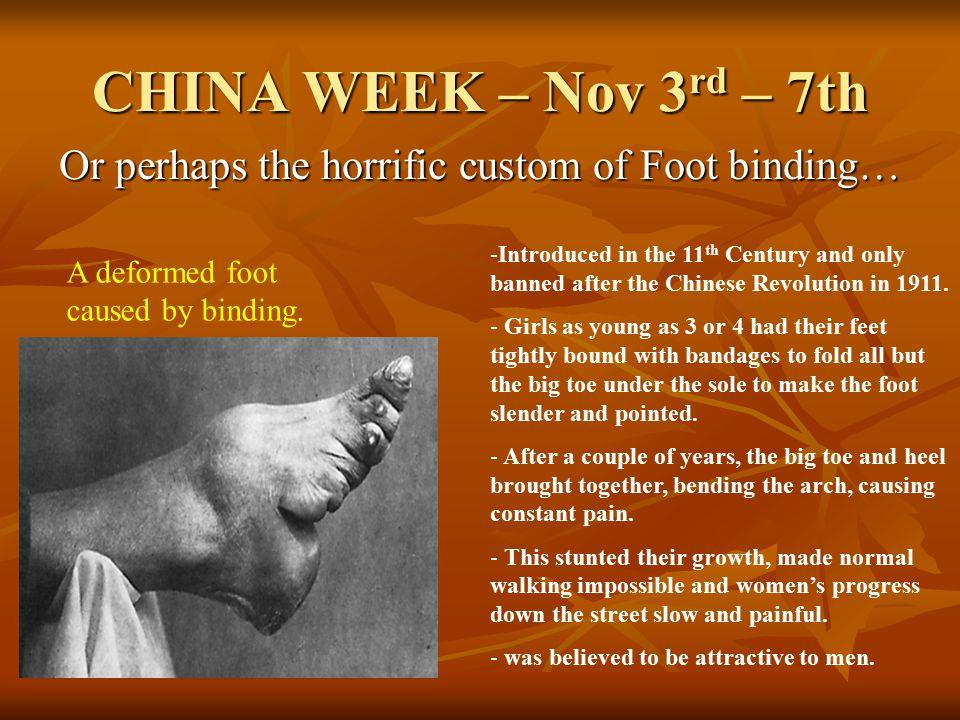 CHINA WEEK – Nov 3 rd – 7th Or perhaps the horrific custom of Foot binding… A deformed foot caused by binding.