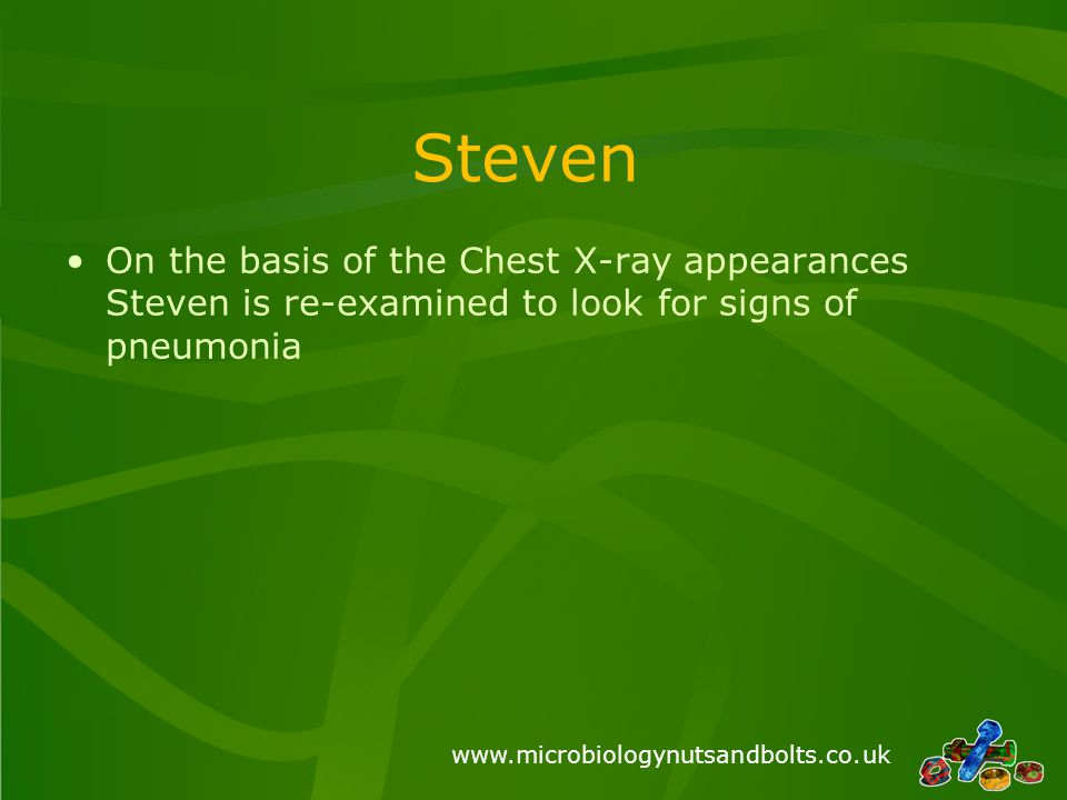 www.microbiologynutsandbolts.co.uk Steven On the basis of the Chest X-ray appearances Steven is re-examined to look for signs of pneumonia