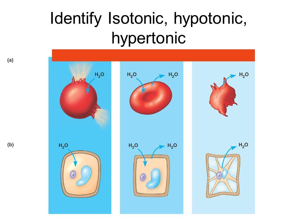 Identify Isotonic, hypotonic, hypertonic