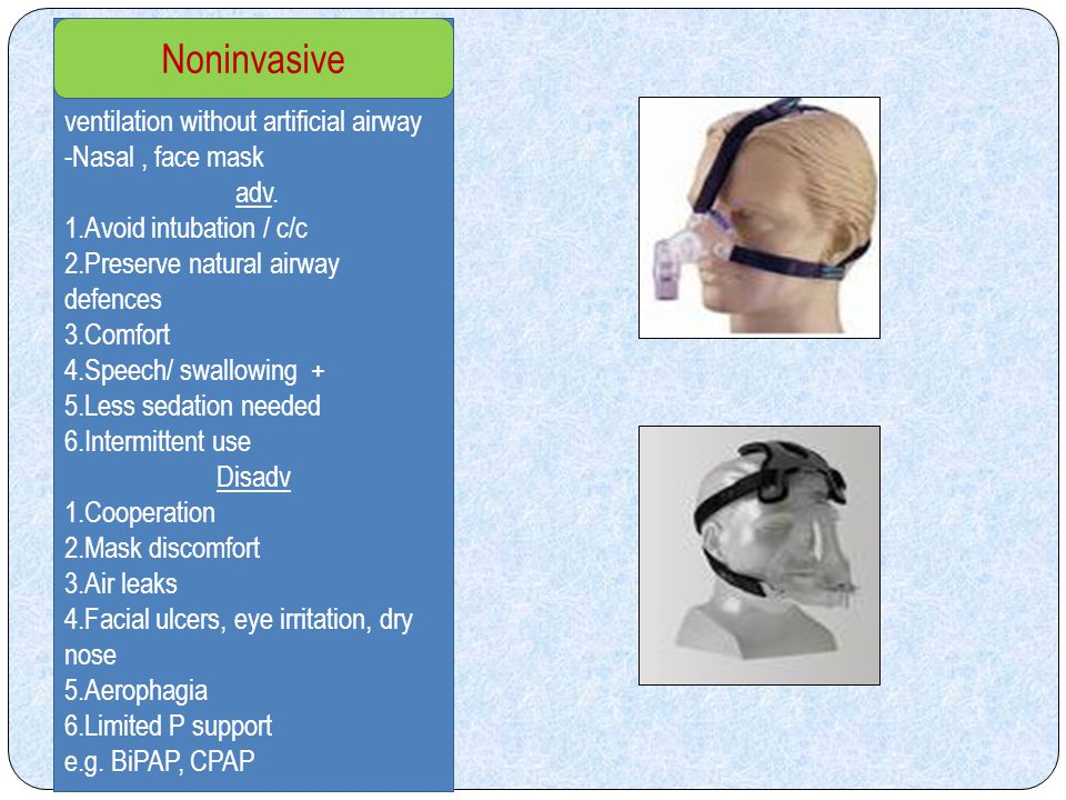 Ventilatory support FULLPARTIAL All energy provided by ventilator e.g.