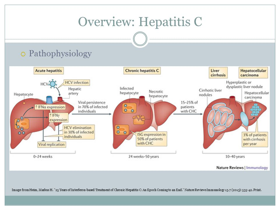 Overview: Hepatitis C  Clinical Presentation  Weeks 1-2: Asymptomatic  Weeks 3-12: Symptoms such as fatigue, anorexia, weakness, jaundice, abdominal pain, or dark urine can appear in 30% of patients  If infection lasts >6 months: Notable for diagnosis of chronic HCV Symptoms include: persisting fatigue, right upper quadrant pain, nausea, or poor appetite.